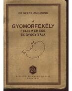 A gyomorfekély felismerése és gyógyítása - Dr. Szerb Zsigmond
